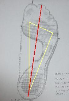 foot01.JPG